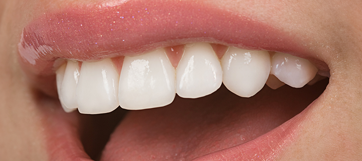 Cosmetic Dentistry Brampton and Teeth whitening brampton