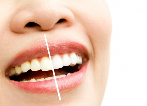 Why You Should Consider Teeth Whitening With Brampton Dentist